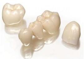 zobni mostiček čiščenje