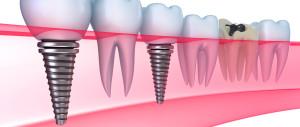 poceni zobni vsadki