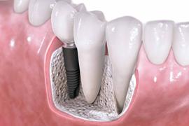 Kam po zobni implantat?