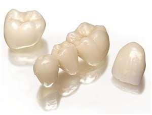 čiščenje zobnega kamna cena