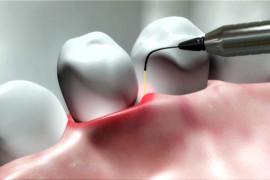 zobni implantati akcija