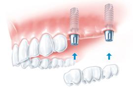 zobni implantant cenik