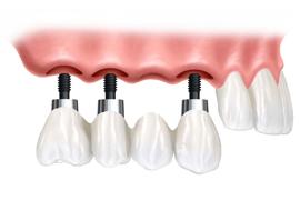 najcenejši zobni implantati
