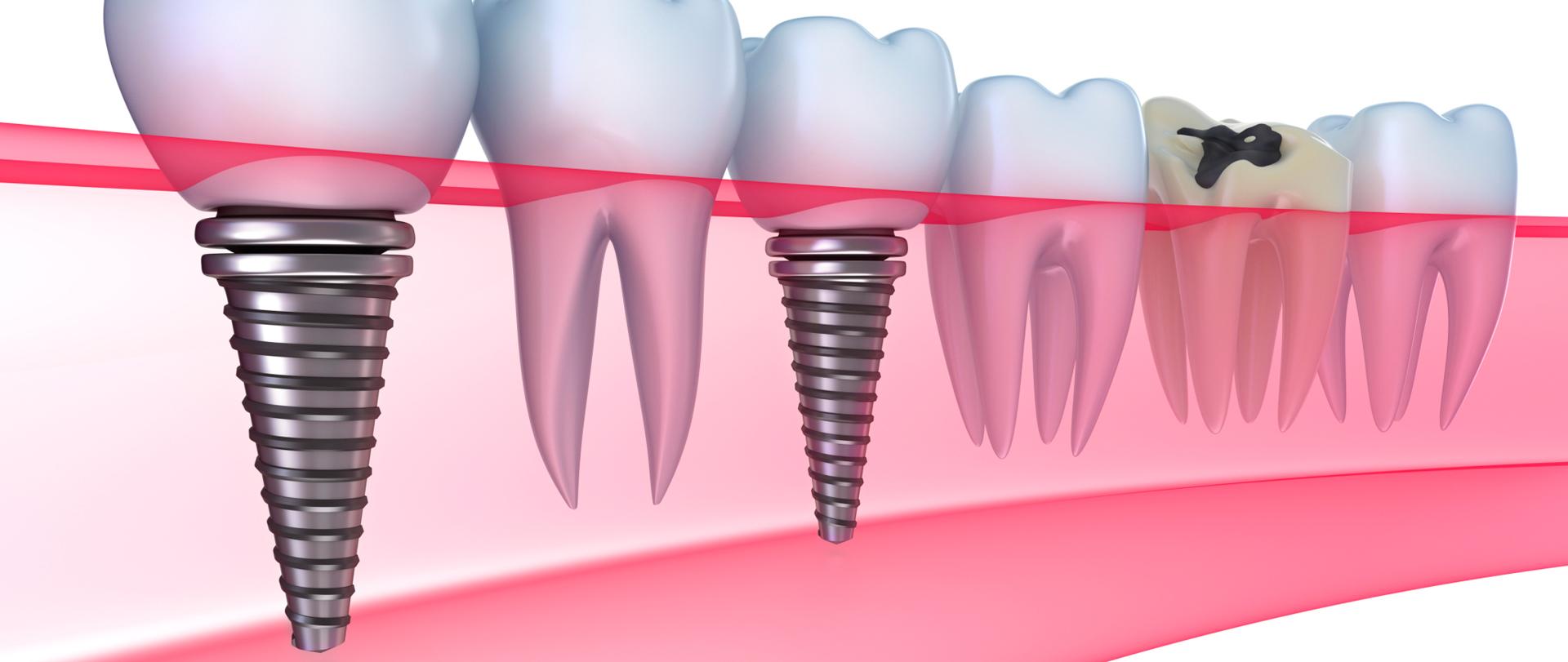 Cena zobnega implantata
