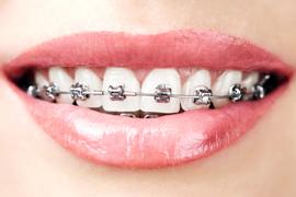 ortodonti v ljubljani
